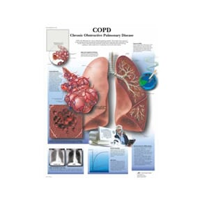 "Plakat anatomisk ""Chronic Obstructive Pulmonary Disease"""