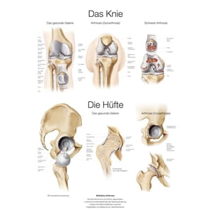 "Plakat anatomisk ""The Knee & Hip"" 50x70cm"